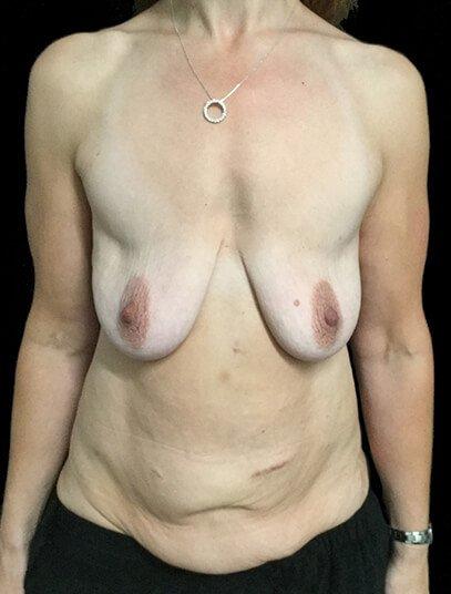 Breast Lift Augmentation And Abdominoplasty Body Lift Mummy Makeover Dr Sharp 1 JL