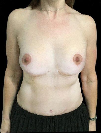 Breast Lift Augmentation And Abdominoplasty Body Lift Mummy Makeover Dr Sharp 2 JL
