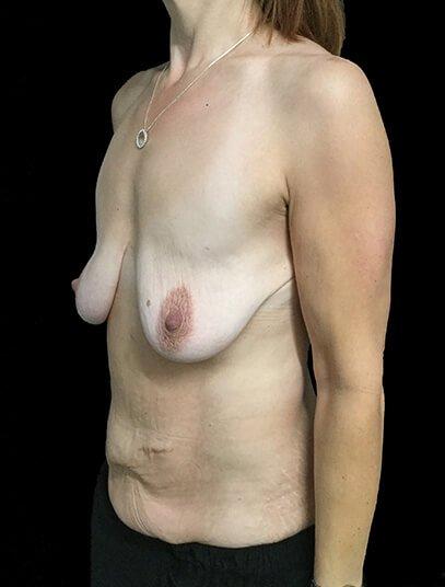 Breast Lift Augmentation And Abdominoplasty Body Lift Mummy Makeover Dr Sharp 3 JL