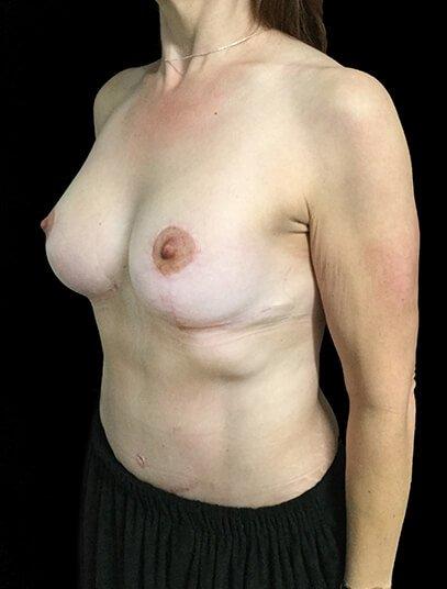 Breast Lift Augmentation And Abdominoplasty Body Lift Mummy Makeover Dr Sharp 4 JL