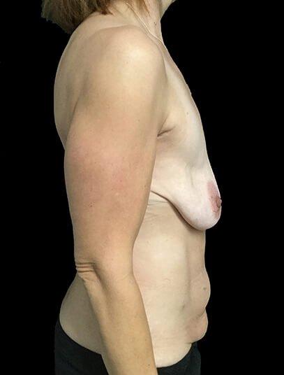 Breast Lift Augmentation And Abdominoplasty Body Lift Mummy Makeover Dr Sharp 5 JL