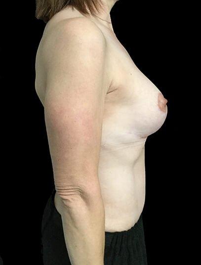 Breast Lift Augmentation And Abdominoplasty Body Lift Mummy Makeover Dr Sharp 6 JL