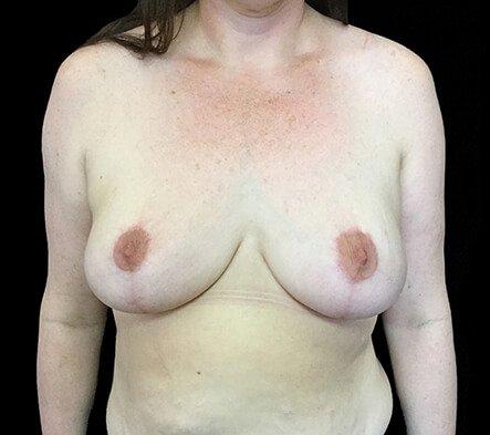 Brisbane Breast Reduction CH 1