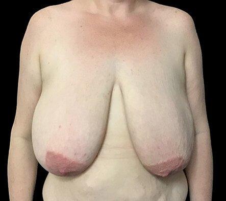 Brisbane Breast Reduction CH 2