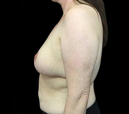 Brisbane Breast Reduction CH 3