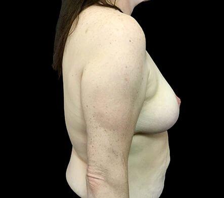 Brisbane Breast Reduction CH 5