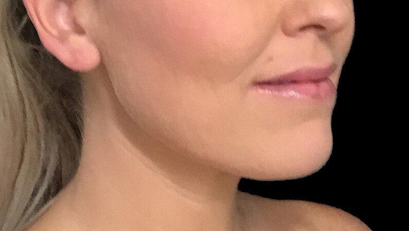 Chin Liposuction Dr Sharp Brisbane ES 2
