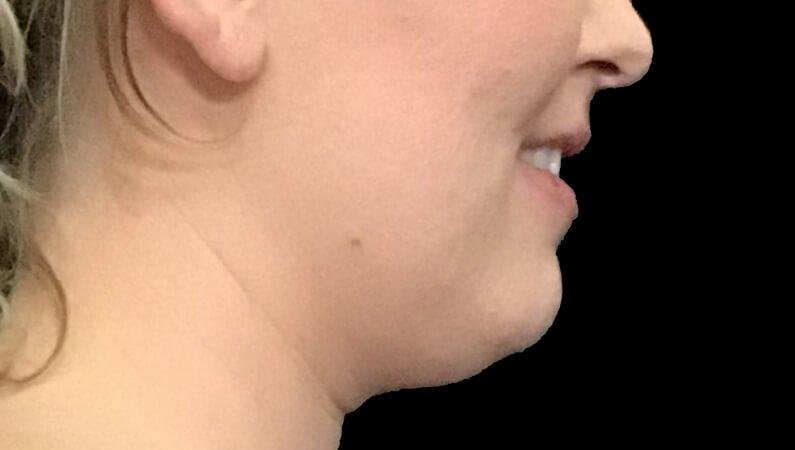 Chin Liposuction Dr Sharp Brisbane ES 5