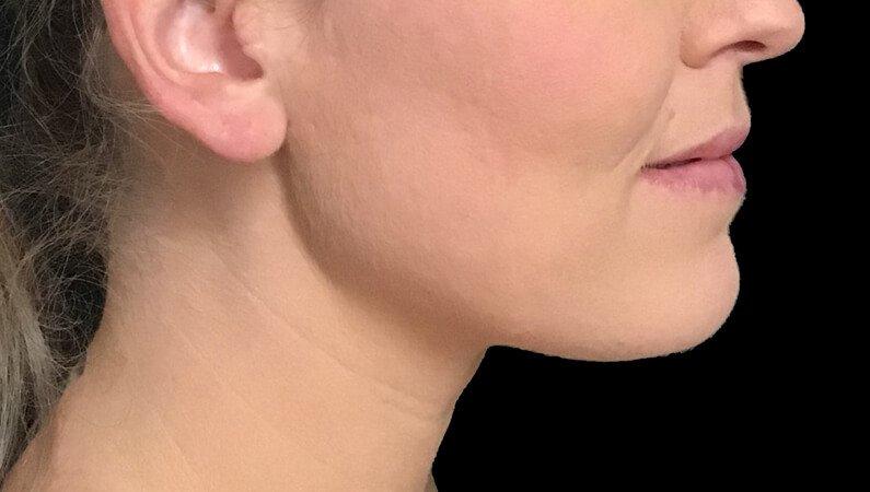 Chin Liposuction Dr Sharp Brisbane ES 6