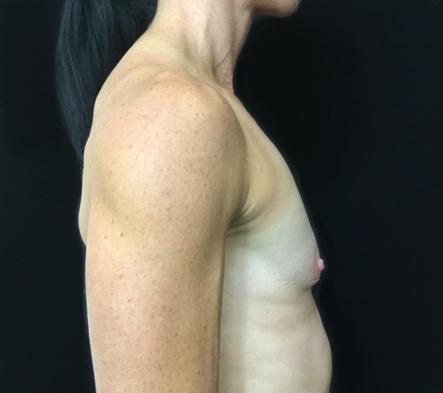 e.-Breast-augmentation-Brisbane-surgeon-for-fit-woman-before-photo