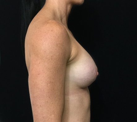 f.-Breast-augmentation-clinic-Brisbane-and-Ipswich-fit-woman-after-photo