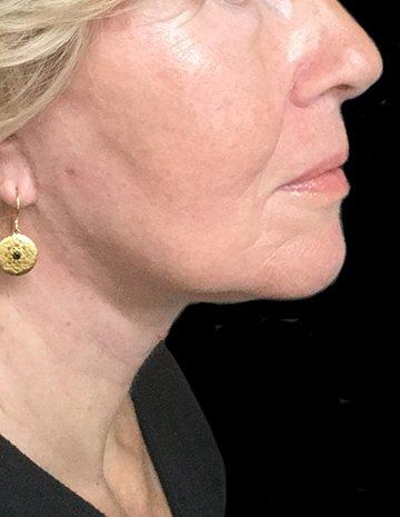Facelift Blepharoplasty Lipo To Neck MW Dr Sharp 2