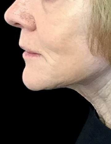 Facelift With Dr Sharp RI 6