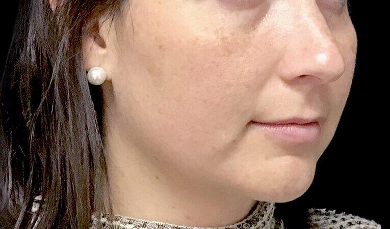 Facial Dermal Filler Results The Sharp Clinics AL