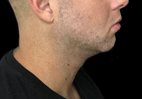 Genioplasty Chin Implant Surgeon Brisbane MZ 5