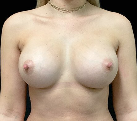 Gmedia Breast-augmentation-front-after-photo-Dr-David-Sharp