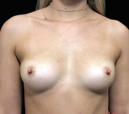 Gmedia Breast-augmentation-front-before-photo-Dr-David-Sharp