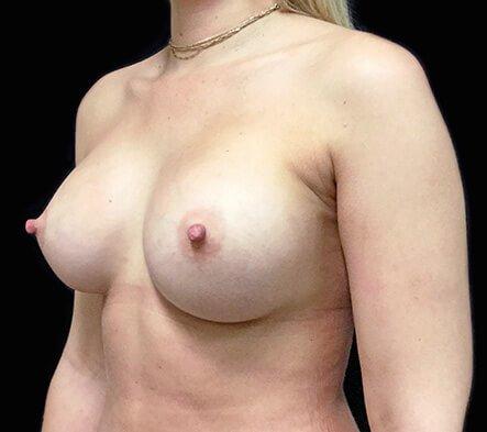 Gmedia Breast-augmentation-left-boob-side-after-photo-Dr-David-Sharp