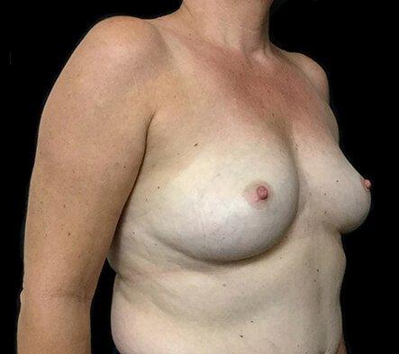 Implant Removal Plastic Surgeon Brisbane AI 2
