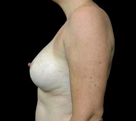 Implant Removal Plastic Surgeon Brisbane AI 5