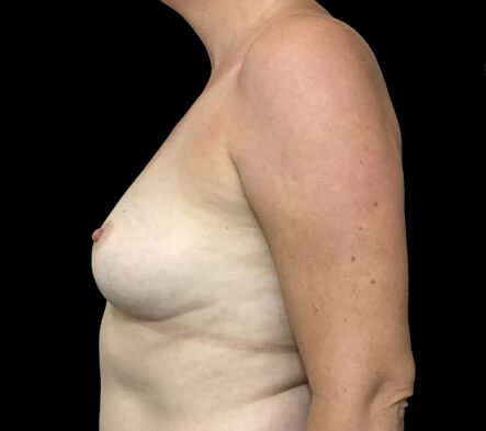 Implant Removal Plastic Surgeon Brisbane AI 6