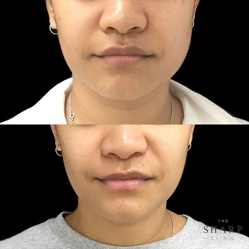 Jawline Slimming Before And After The Sharp Clinic