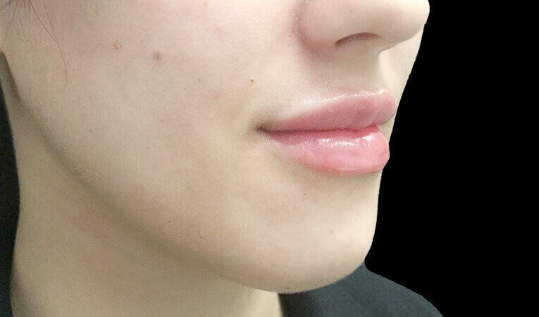 Lip Filler The Sharp Clinics Brisbane Ipswich IS 1 After One And A Half Mls