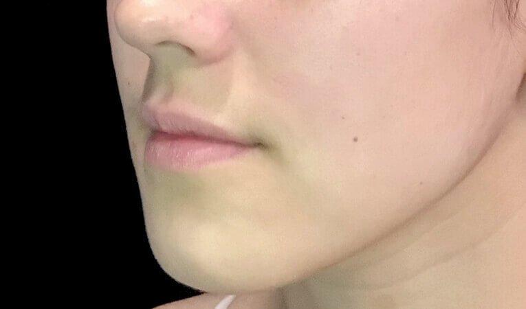 Lip Filler The Sharp Clinics Brisbane Ipswich IS 4