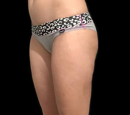 Liposuction Outer Hips And Flanks AB 4