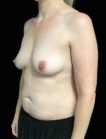 Mummy Makeover Abdo Breast Augmentation 390cc Anatomical High Profile Implant KN 3