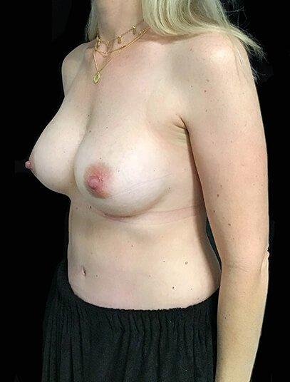 Mummy Makeover Abdo Breast Augmentation 390cc Anatomical High Profile Implant KN 4