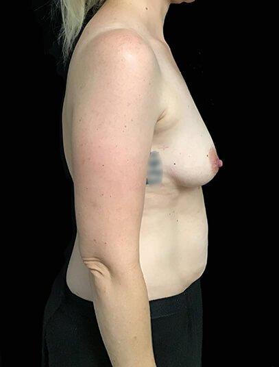 Mummy Makeover Abdo Breast Augmentation 390cc Anatomical High Profile Implant KN 6