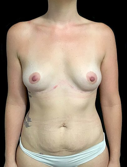 Mummy Makeover Abdominoplasty Liposuction To Flanks And Thighs Breast Augmentation 300 CC PA 1
