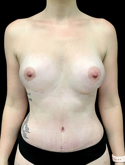 Mummy Makeover Abdominoplasty Liposuction To Flanks And Thighs Breast Augmentation 300 CC PA 2