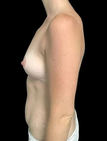 Mummy Makeover Abdominoplasty Liposuction To Flanks And Thighs Breast Augmentation 300 CC PA 3