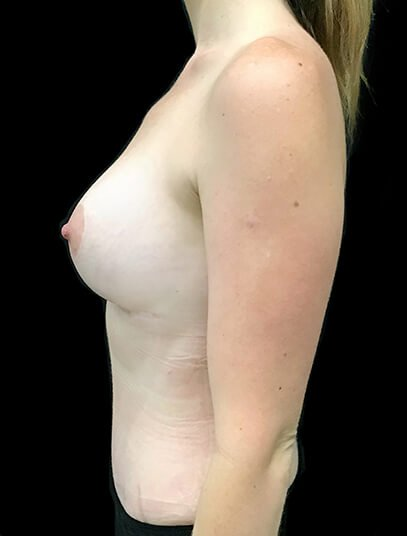 Mummy Makeover Abdominoplasty Liposuction To Flanks And Thighs Breast Augmentation 300 CC PA 4