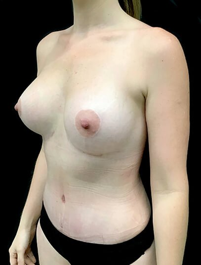 Mummy Makeover Abdominoplasty Liposuction To Flanks And Thighs Breast Augmentation 300 CC PA 6