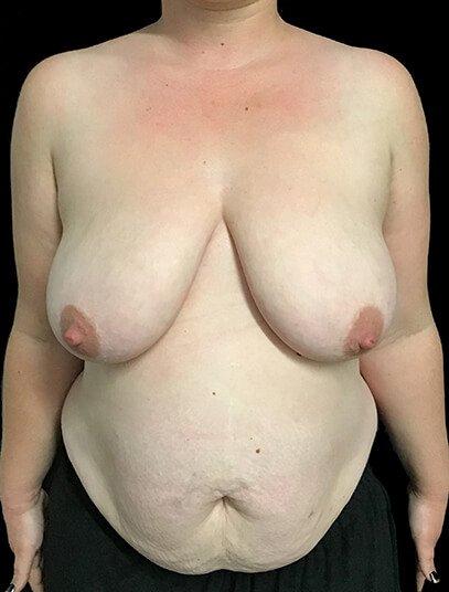 Mummy Makeover Abdominoplasty Breast Reduction Dr Sharp JS 1