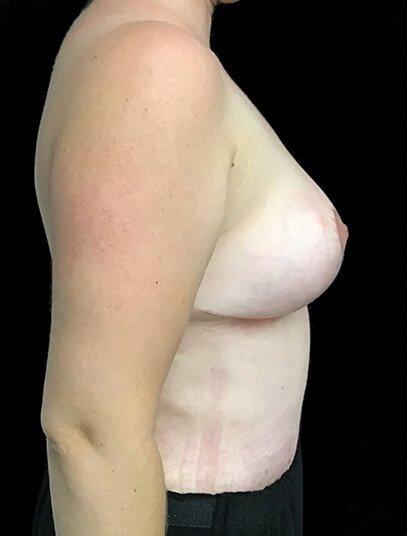 Mummy Makeover Abdominoplasty Breast Reduction Dr Sharp JS 4
