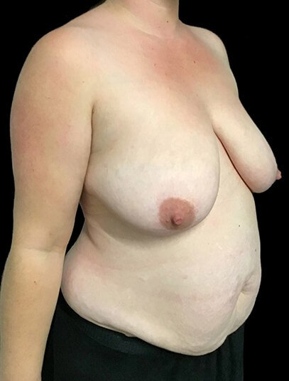 Mummy Makeover Abdominoplasty Breast Reduction Dr Sharp JS 5