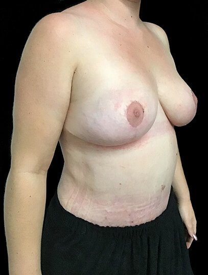 Mummy Makeover Abdominoplasty Breast Reduction Dr Sharp JS 6