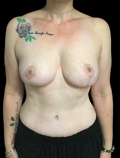 Mummy Makeover Breast Surgery Tummy Tuck LW 2