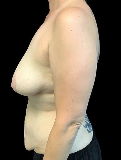 Mummy Makeover Breast Surgery Tummy Tuck LW 3