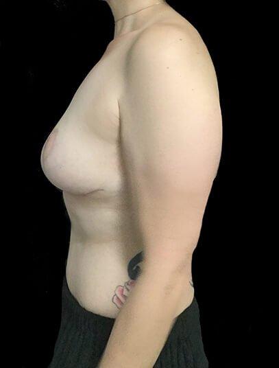 Mummy Makeover Breast Surgery Tummy Tuck LW 4