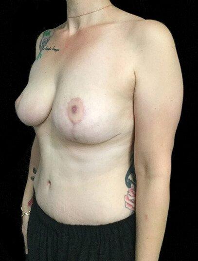 Mummy Makeover Breast Surgery Tummy Tuck LW 6
