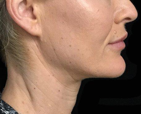 Neck Lift Facelift Surgery Brisbane SM 1