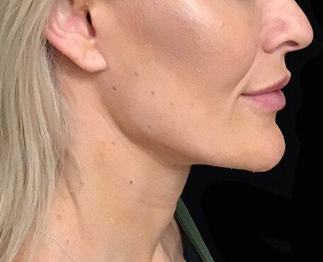 Neck Lift Facelift Surgery Brisbane SM 2
