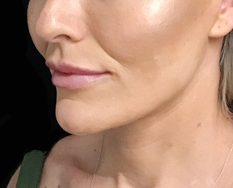 Neck Lift Facelift Surgery Brisbane SM 4