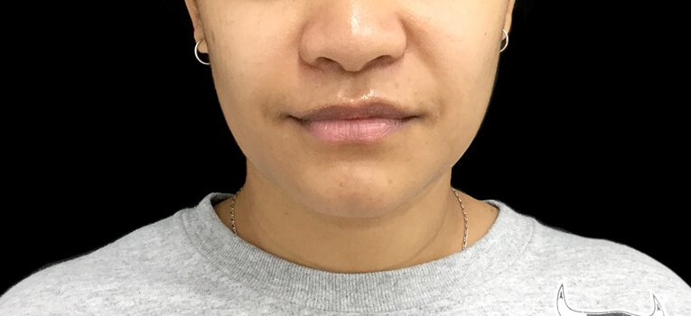 Necklift Jaw Facial Slimming Injections After HL