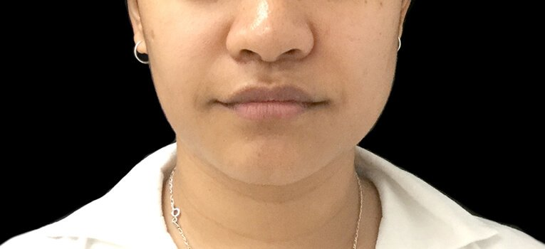 Necklift Jaw Slimming Injections Before HL